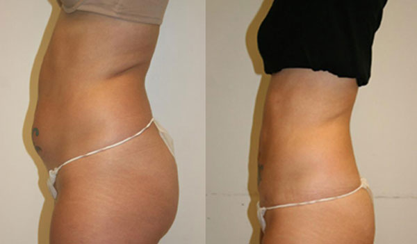 secret-liposuction-alternative